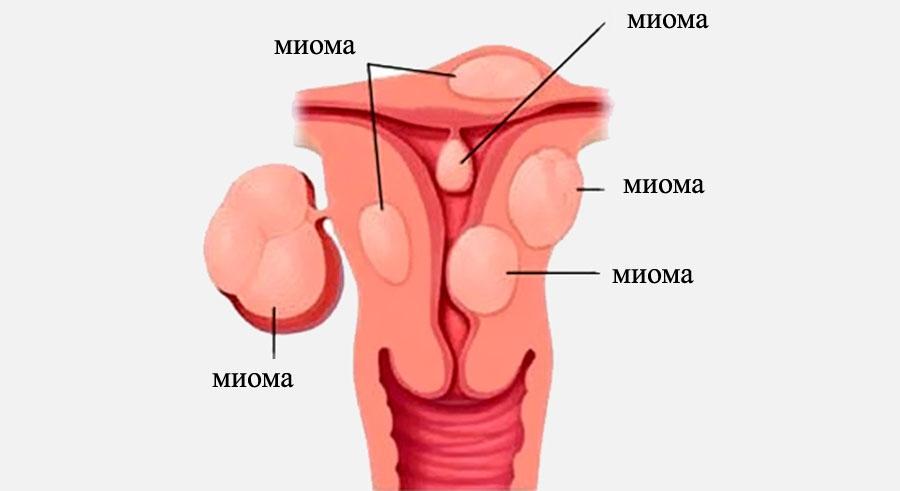 Что мы знаем о миоме матки