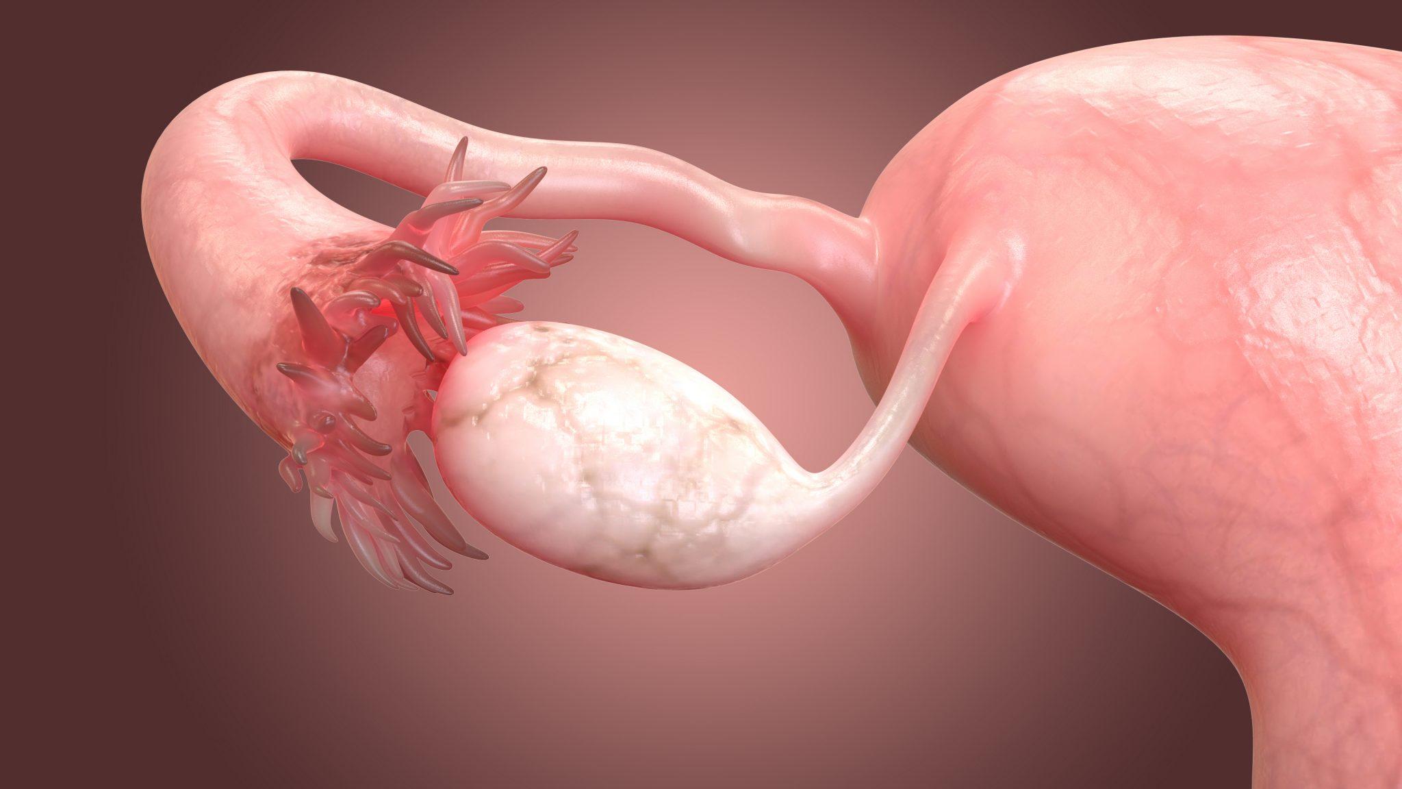 Кисты яичников